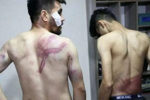 طالبان کی حراست میں صحافیوں کو بےرحمی سے پیٹا گیا۔ (فوٹو: رائٹرس)